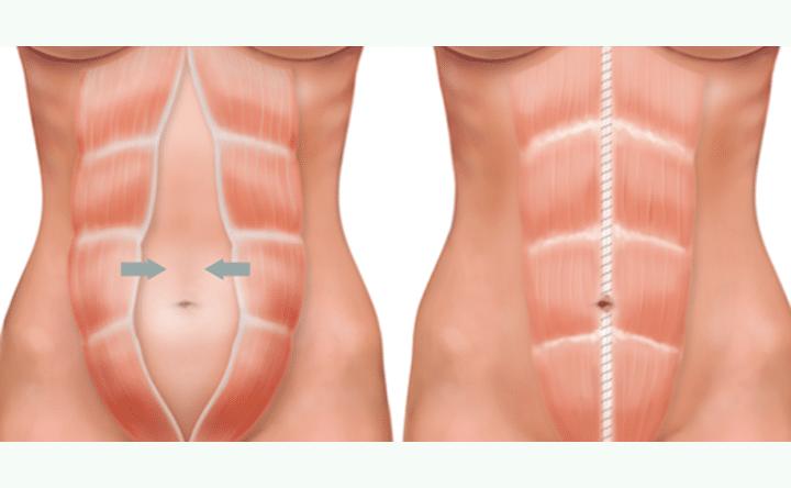 Muscles-abdomen-abdominoplastie-Tunisie