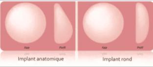 Types-implants-augmentation-mammaire-tunisie