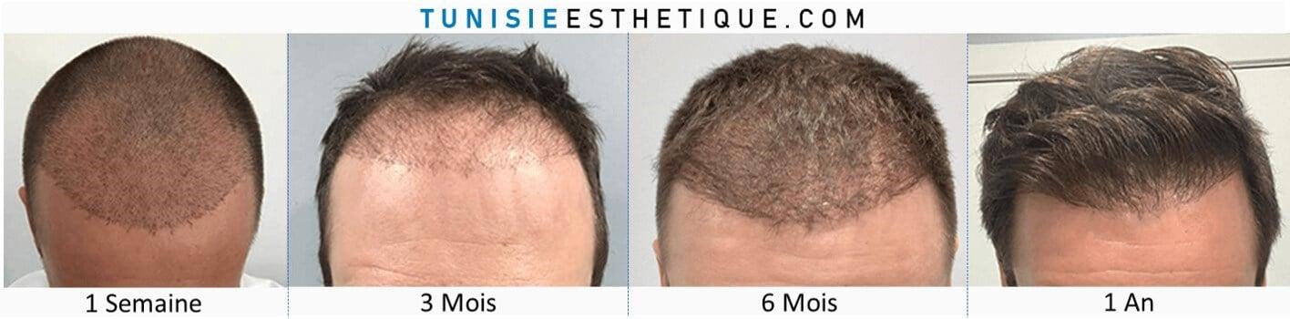greffe-de-cheveux-photo-avant-apres-1