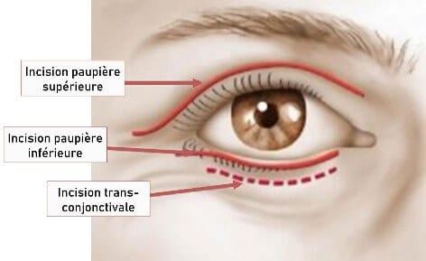 Blepharoplastie-tunisie