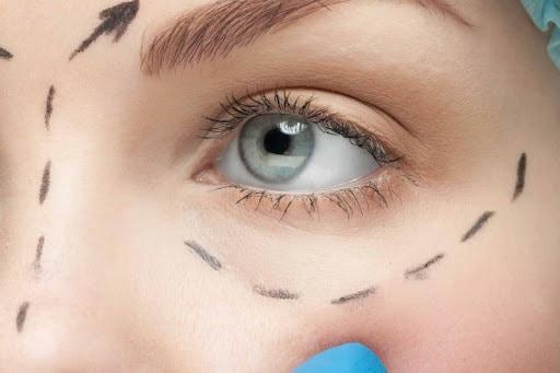 Blepharoplastie-yeux-tunisie