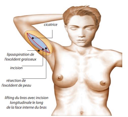 Cicatrice-lifting-bras