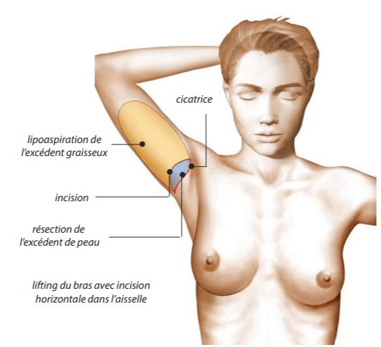 Cicatrice-2-Lifting-Bras