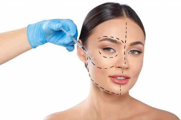 Injection-graisse-visage