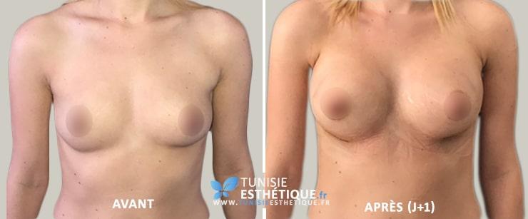 Lipofilling-mammaire-tunisie-Avant-Apres-1