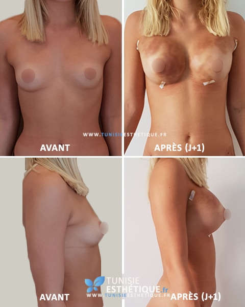 Lipofilling-mammaire-tunisie-Avant-Apres-3