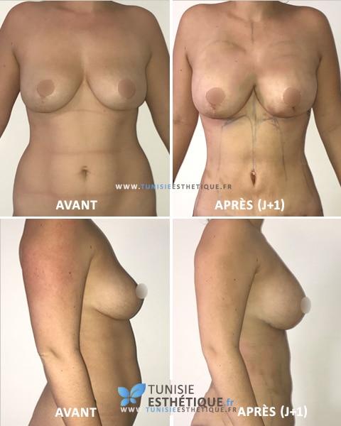Lipofilling-mammaire-Tunisie-Avant-Apres-2