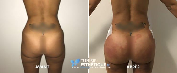 Injection-graisse-fesse-tunisie-1