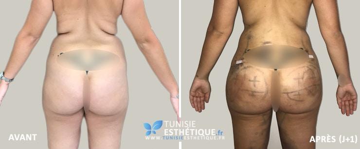 Liposuccion-injection-graisse-fessier-tunisie