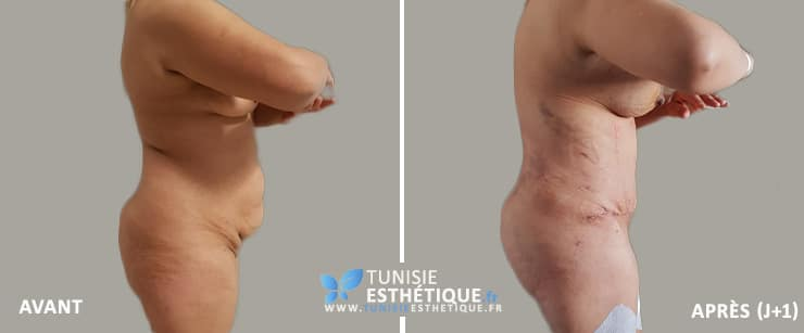 Abdominoplastie-Tunisie-photo-avant-apres-3