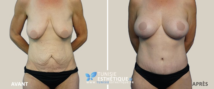Abdominoplastie-Tunisie-photo-avant-apres-6