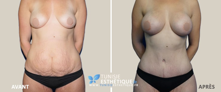 Abdominoplastie-Tunisie-photo-avant-apres-4