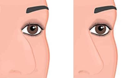 Corriger les défauts et problèmes de son nez grâce à la rhinoplastie