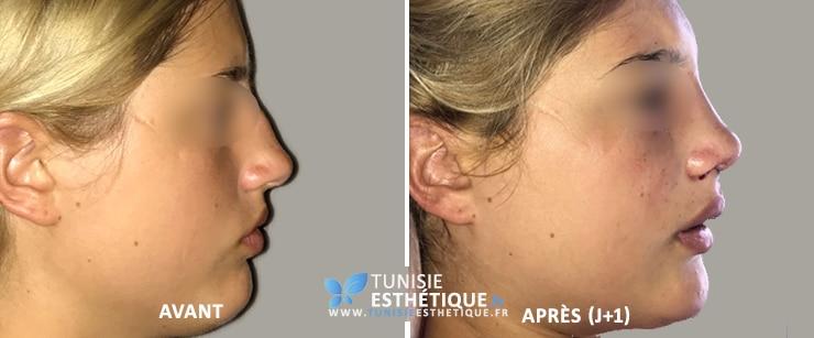 Rhinoplastie-tunisie-avant-apres-3