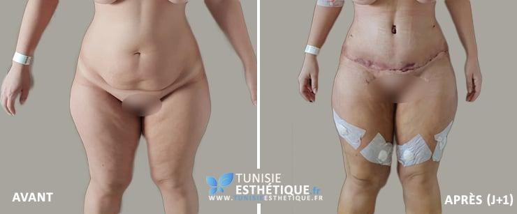 Abdominoplastie-Tunisie-photo-avant-apres-2