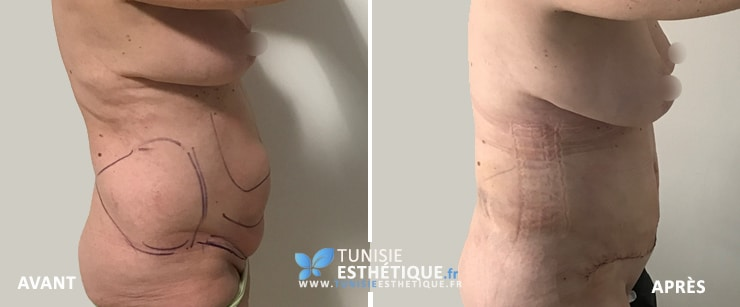 Abdominoplastie-Tunisie-photo-avant-apres-1