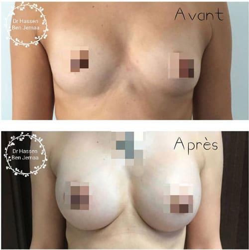 Augmentation-mammaire-tunisie-Dr-Ben-Jemaa-Tunisie