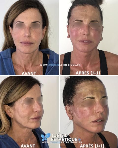 Lipofilling-visage-avant-apres