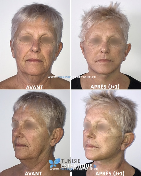 Lifting-visage-photos-avant-apres-2