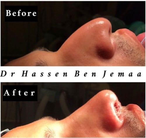 Liposuccion-Lipofilling-Fesses-Tunisie-2-Dr-Ben-Jemaa