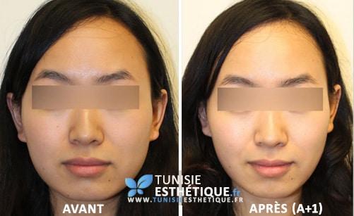 Bichectomie-Tunisie-esthetique-photo-avant-apres