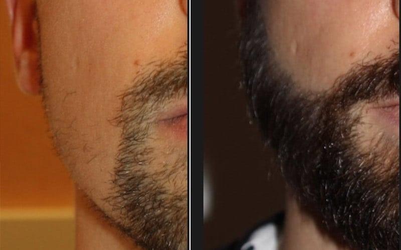 Greffe-barbe-Tunisie-Avant-Apres-1