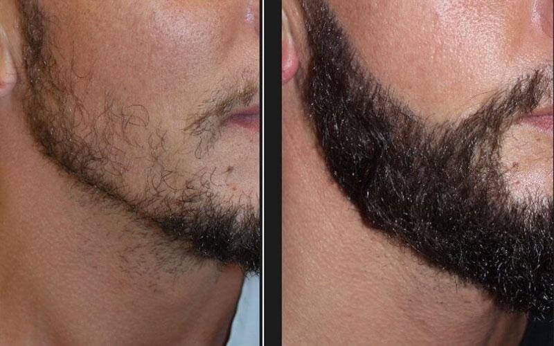 Greffe-barbe-Tunisie-Avant-Apres-2