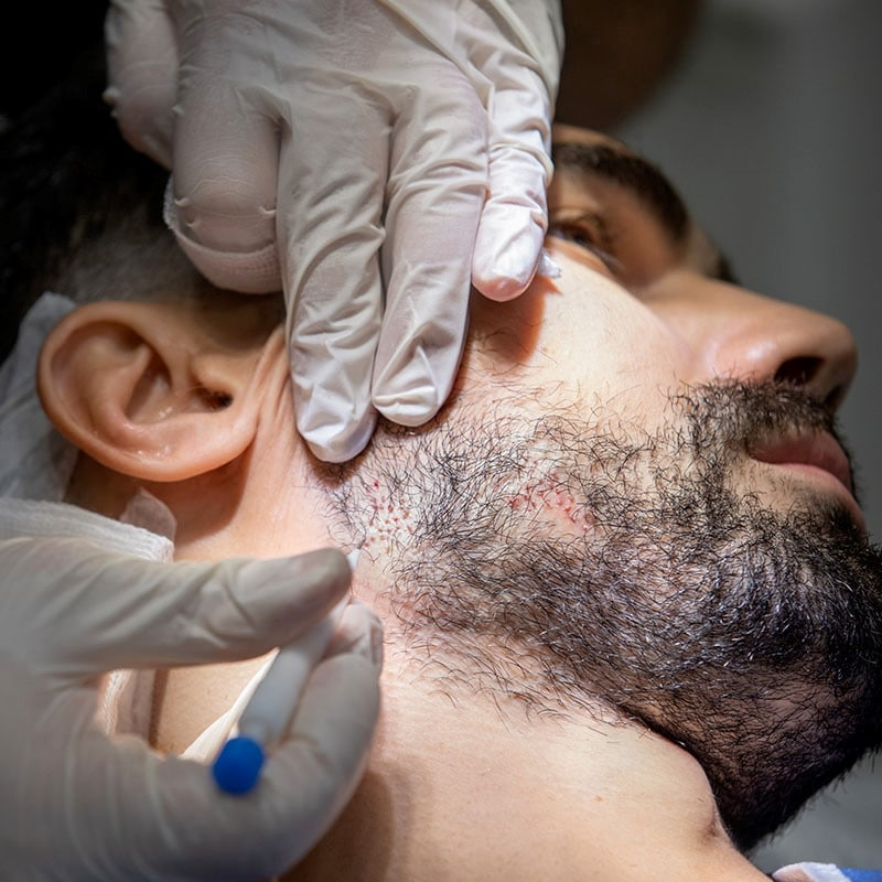Greffe-de-barbe-article-Tunisie-esthetique-3