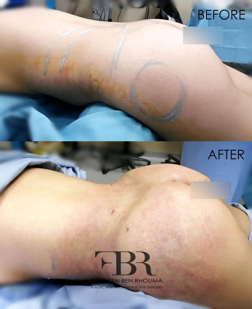 Liposuccion-lipofilling-photo-avant-apres-Dr-Ben-Rhouma