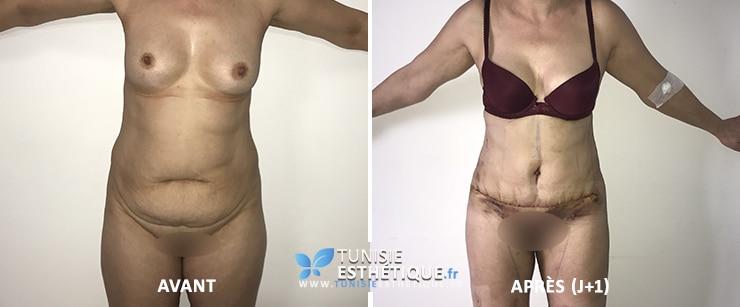 Liposuccion-ventre-cuisses-et-abdominoplastie-avant-apres-tunisie-esthetique