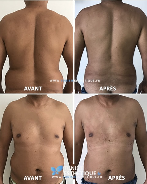 Liposuccion-ventre-homme-Tunisie-Esthetique-Avant-Apres