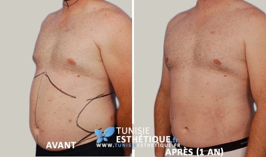 Liposuccion-ventre-homme-Tunisie-Esthetique-Avant-Apres3