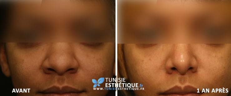 Rhinoplastie Avant Apres Photo 1