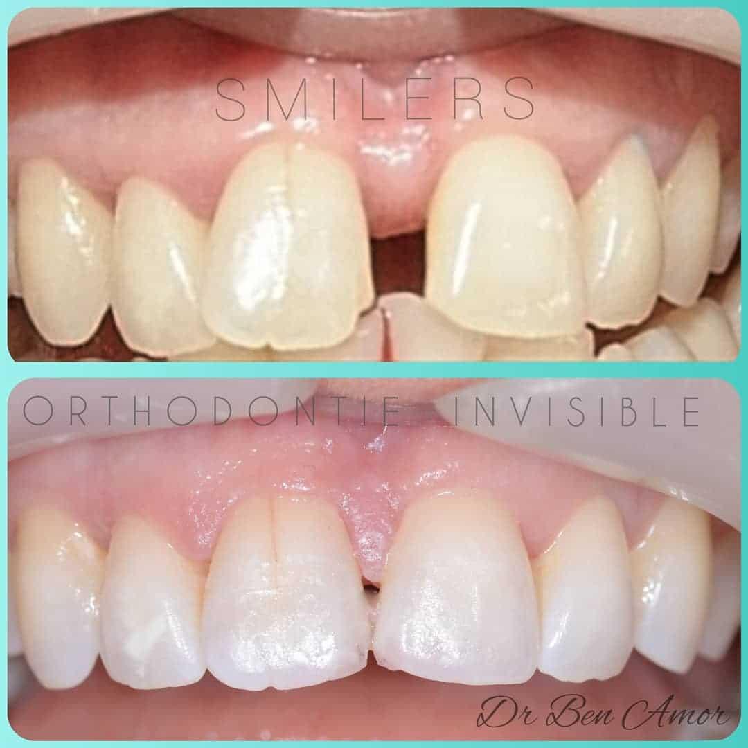Orthodontie invisible avant apres tunisie esthetique 1