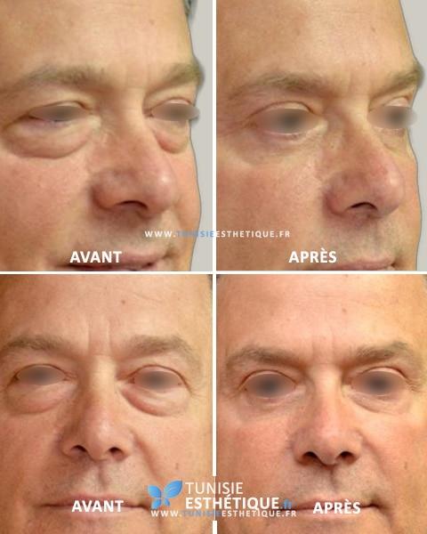 blepharoplastie tunisie avant apres 3