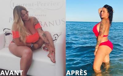 Sarah Fraisou : sa chirurgie esthétique en tunisie