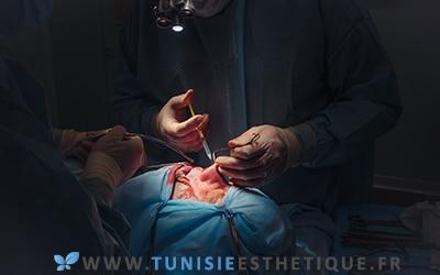 Septoplastie à un patient sur table opératoire