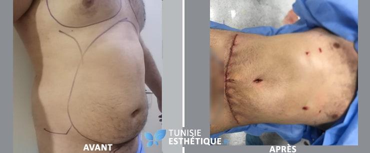 abdominoplastie tunisie homme par dr ben rhouma