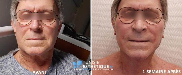 Lifting visage Tunisie dr Ben Rhouma