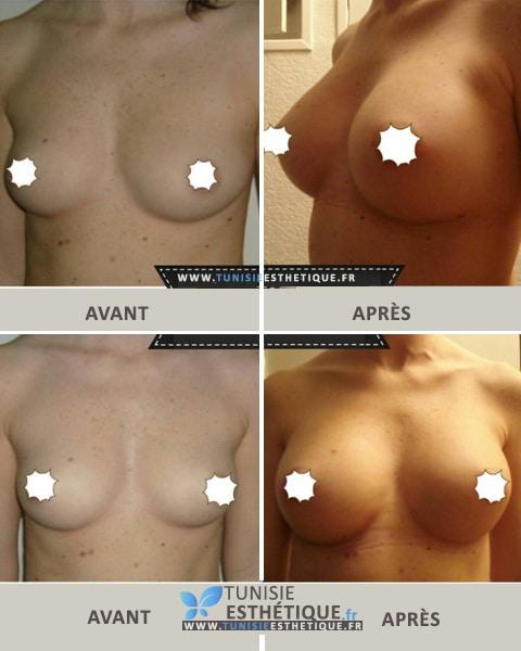 Augmentation mammaire par protheses en Tunisie par Dr Hassen Ben Jemaa