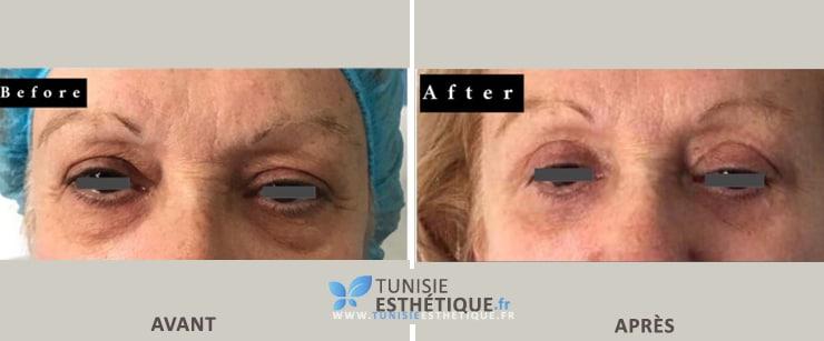 Blepharoplastie Tunisie Dr Ben Jemaa