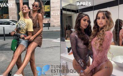 Les sœurs El Himer et la chirurgie esthétique