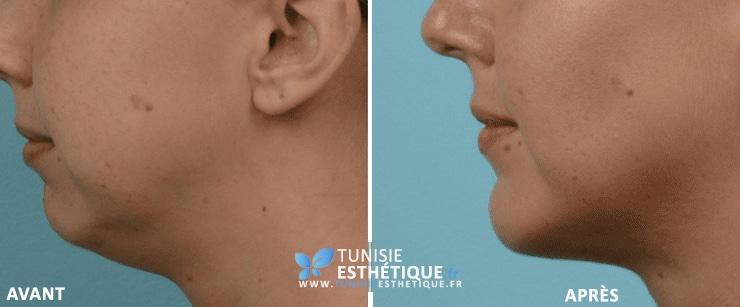 liposuccion du double menton à Tunis, photo avant après