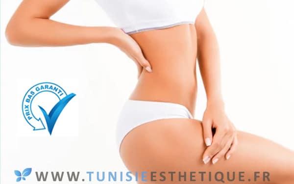 Prix bas liposuccion Tunisie