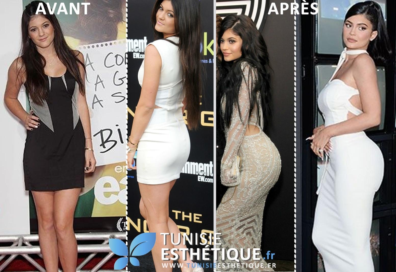 Kylie jenner corps avant apres