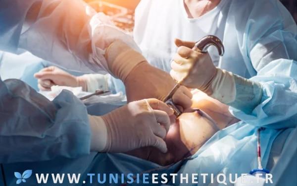 reconstruction mammaire : femme sur table opératoire