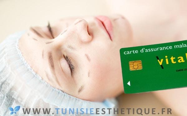 Chirurgie esthetique et remboursement en France - Image